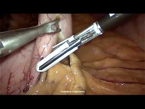 2Sleeve gastrectomy, hiatal hernia, reсonstruction of phreno esophageal membrane