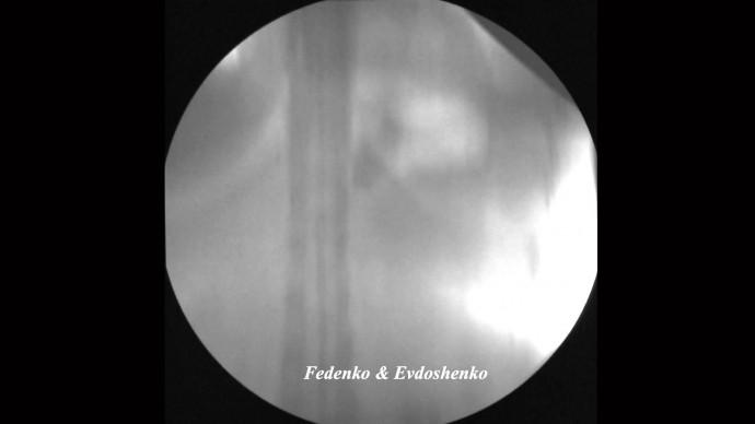 регулировка бандажа 3456 рентген