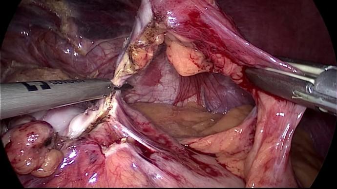 шунт после бандажа, удаление капсулы