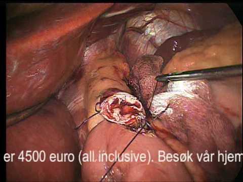 laparoscopic mage bypass