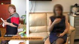 бариатрия, СЛИВ, продольная резекция желудка, похудение на 35 кг