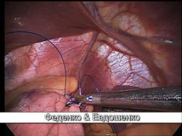 Гастропликация - Gastric Plication Surgery