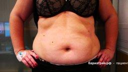 косметическая модификация операции рукавной гастропластики СЛИВ продольная резекция желудка