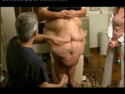 Дона Агилар, женщина с огромным кожным фартуком, удаляет лишнюю кожу