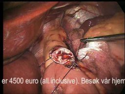 laparoscopic mage bypass