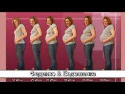 Беременность 6 мес. на фоне установленного бандажа