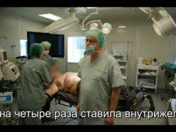 Внутрижелудочный баллон. Пациентка довольна.