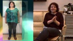СЛИВ рукавная гастропластика, продольная резекция желудка, похудение на 50 кг, отзыв